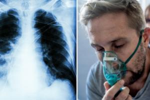 Пневмония без симптомов – как вовремя распознать угрожающую болезнь?
