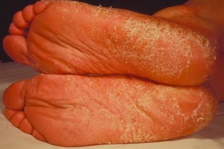 Микоз стопы: причины, симптомы, проблемы диагностики и лечение