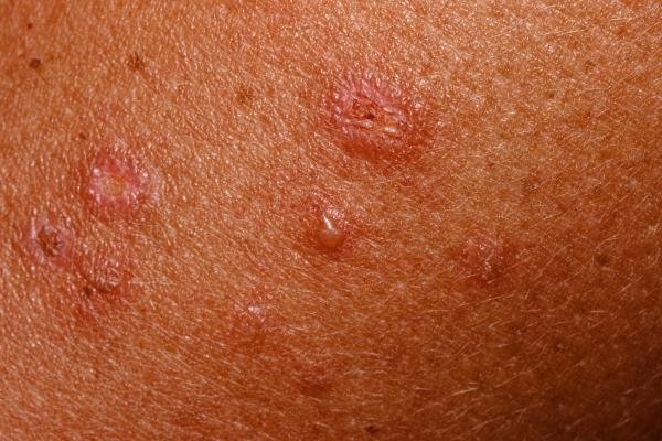Что такое герпетиформный дерматит: причины развития, симптоматика и особенности лечение