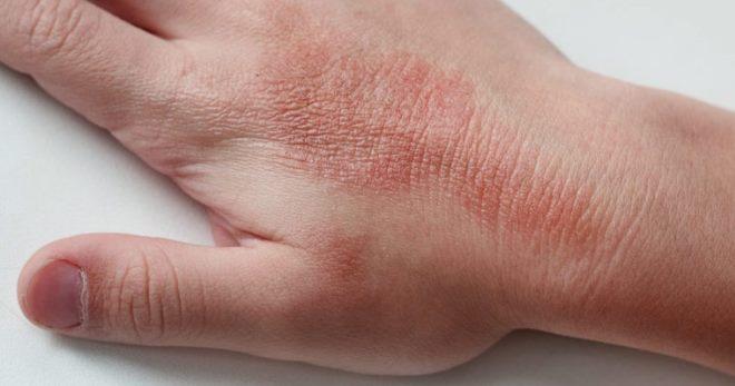 Сухая экзема – симптомы, причины и самые эффективные способы лечения