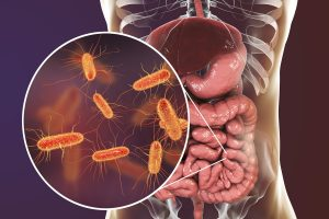Дисбактериоз на женский лад