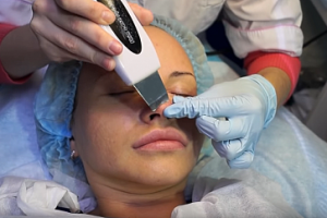Все о процедуре ультразвуковой чистки лица