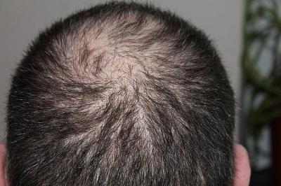 Лечение выпадения волос: что важно знать?