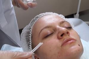 Кому показана процедура пилинга кожи головы?